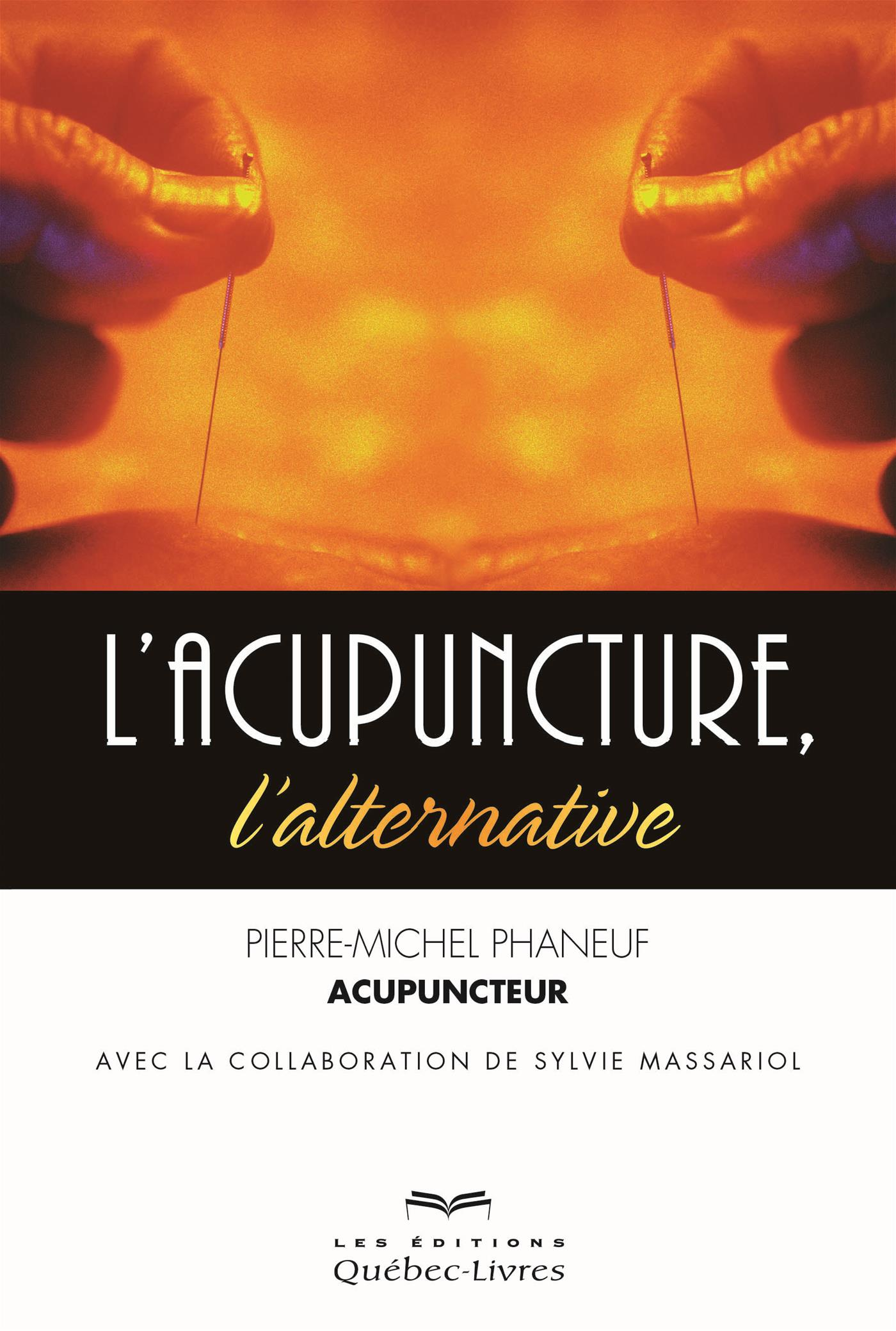 L'acupuncture, l'alternative